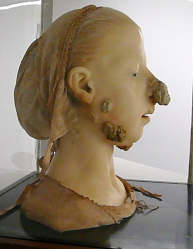 1865 wax model of woman with tubercular scrofula