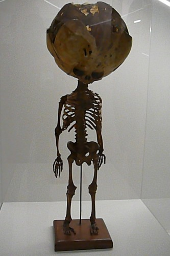 Skeleton of child with hydrocephalus